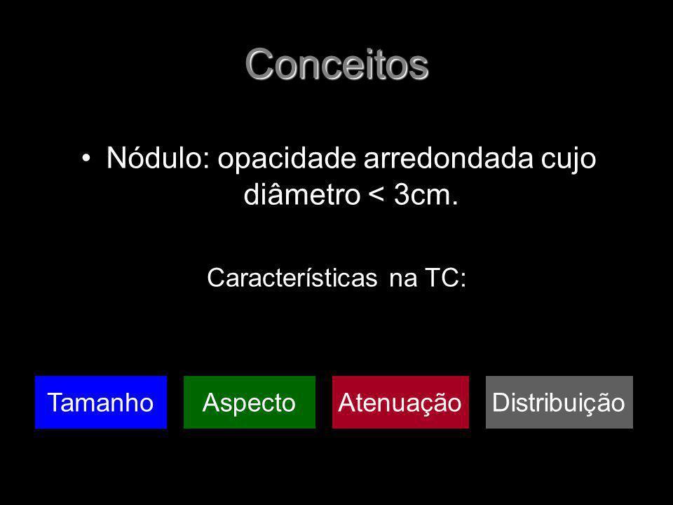 Conceitos Nódulo: opacidade arredondada cujo diâmetro < 3cm. Características na TC: TamanhoAspectoAtenuaçãoDistribuição