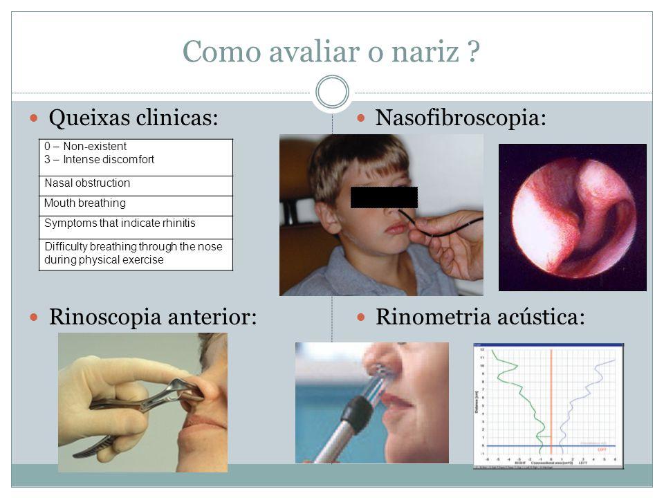 Como avaliar o nariz ? Queixas clinicas: Rinoscopia anterior: Nasofibroscopia: Rinometria acústica: 0 – Non-existent 3 – Intense discomfort Nasal obst
