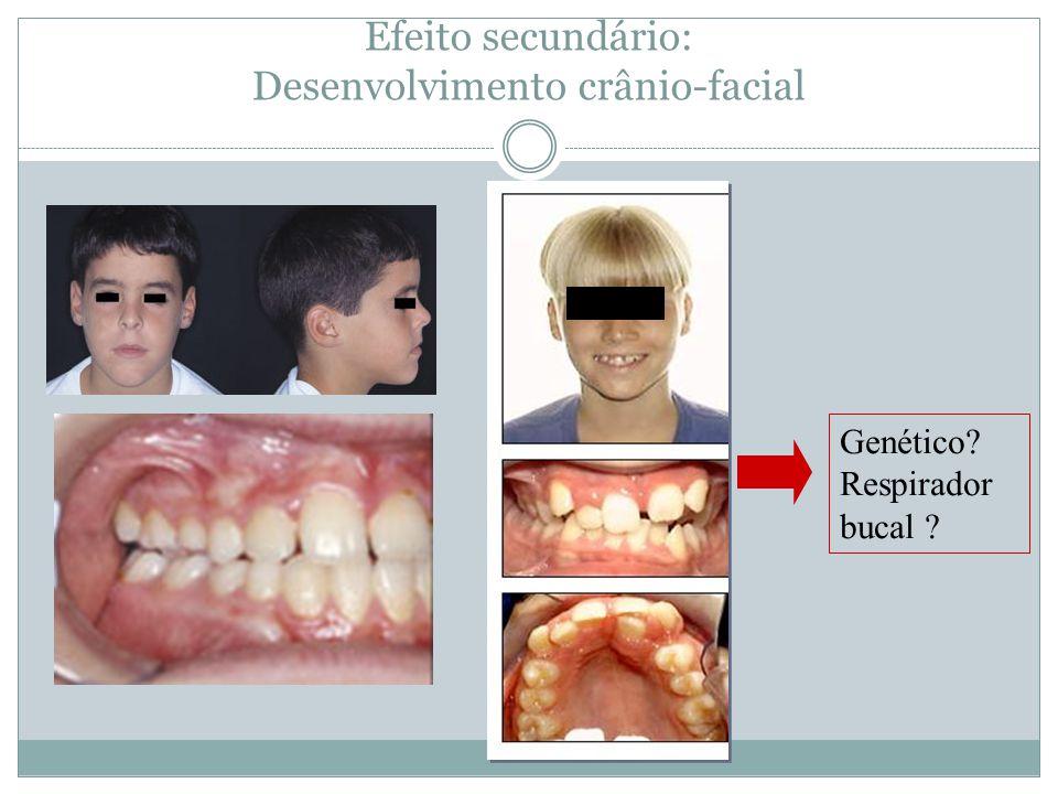 Efeito secundário: Desenvolvimento crânio-facial Genético? Respirador bucal ?