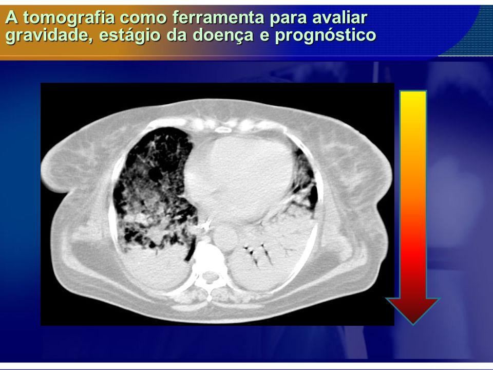 A tomografia como ferramenta para avaliar gravidade, estágio da doença e prognóstico