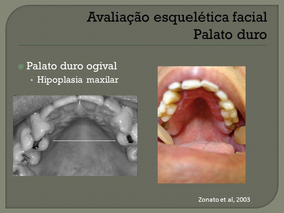  Palato duro ogival Hipoplasia maxilar Zonato et al, 2003