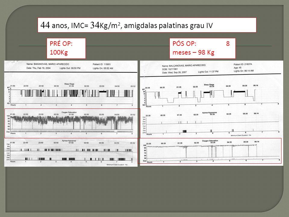 44 anos, IMC= 34 Kg/m 2, amigdalas palatinas grau IV PRÉ OP: 100Kg PÓS OP: 8 meses – 98 Kg