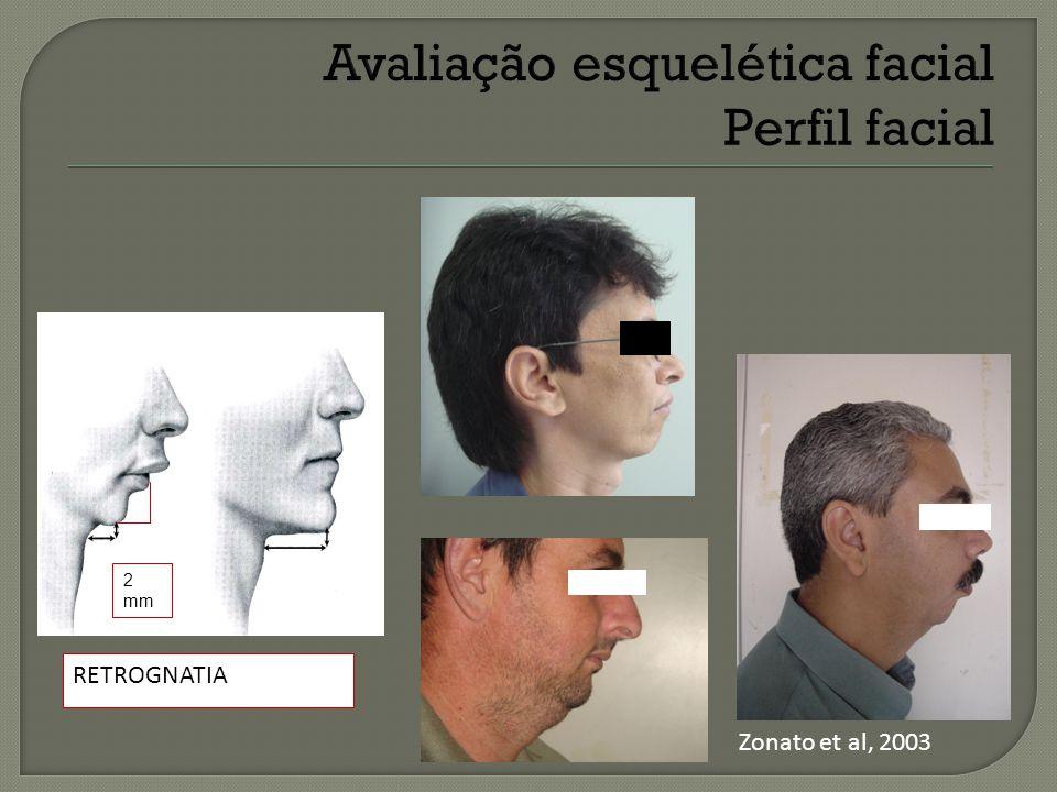 2 mm RETROGNATIA Zonato et al, 2003