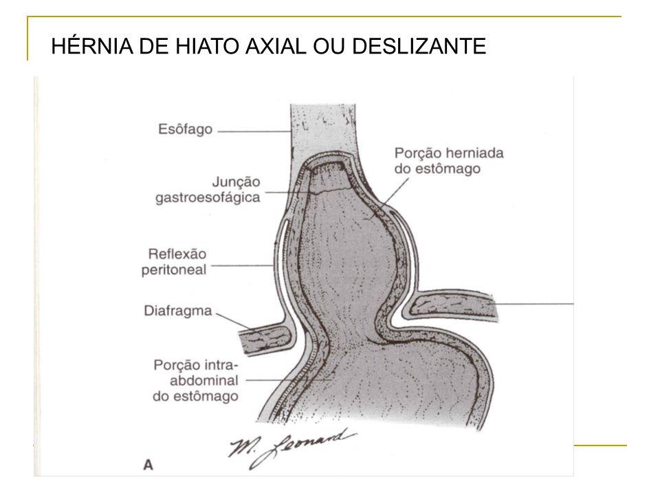 HÉRNIA DE HIATO AXIAL OU DESLIZANTE