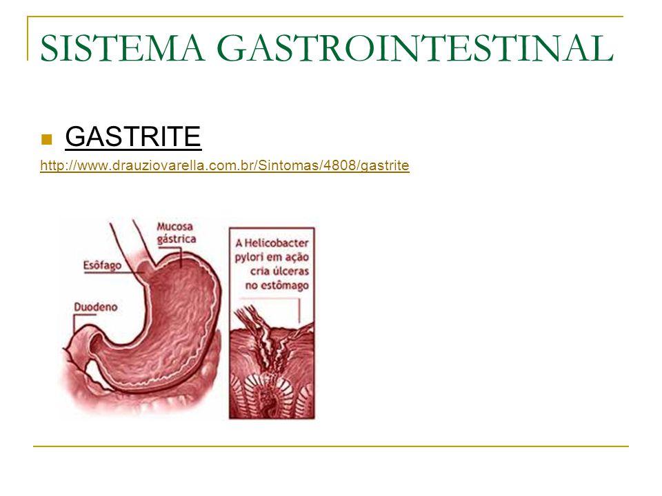 SISTEMA GASTROINTESTINAL GASTRITE http://www.drauziovarella.com.br/Sintomas/4808/gastrite