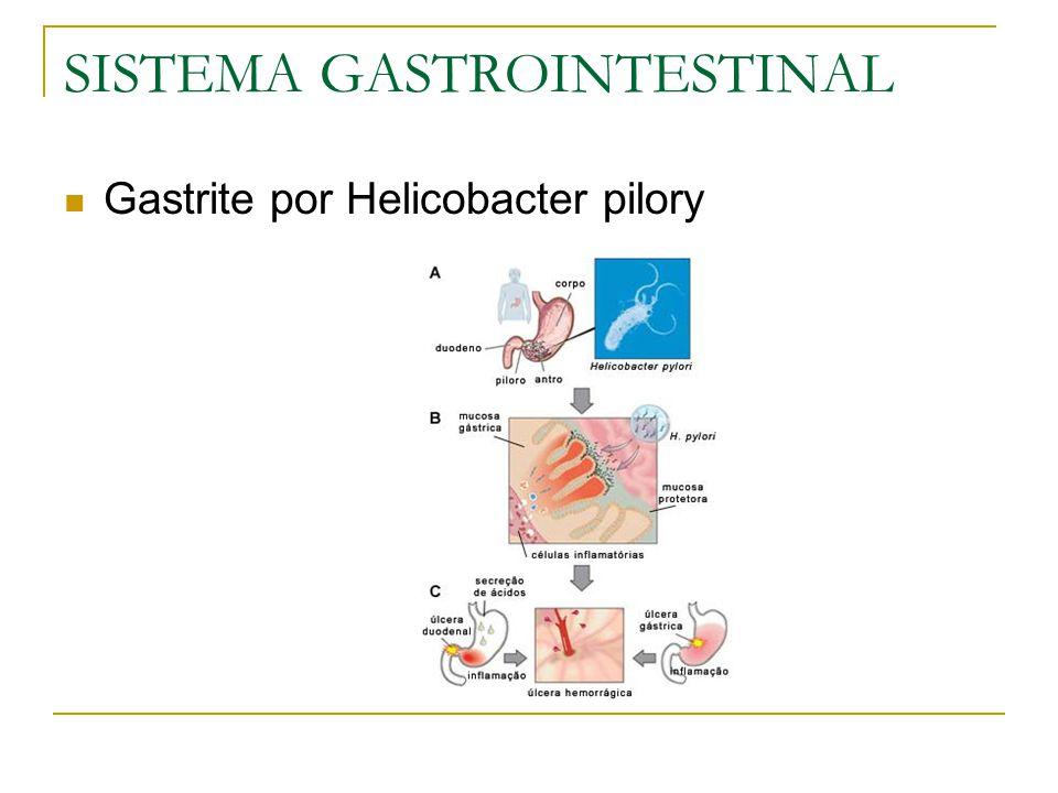 SISTEMA GASTROINTESTINAL Gastrite por Helicobacter pilory