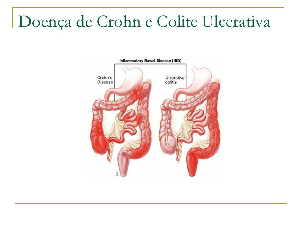 Doença de Crohn e Colite Ulcerativa