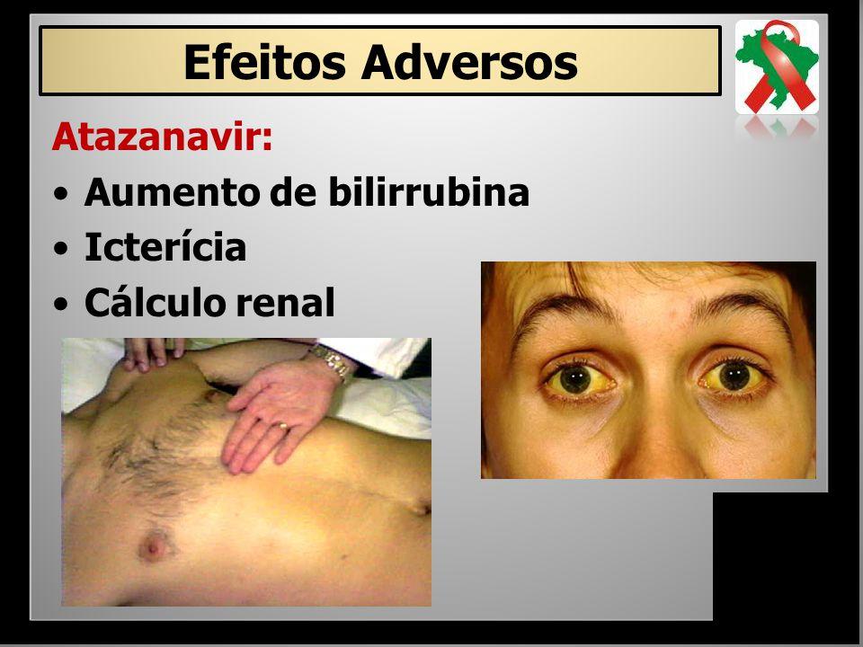 Atazanavir: Aumento de bilirrubina Icterícia Cálculo renal Efeitos Adversos