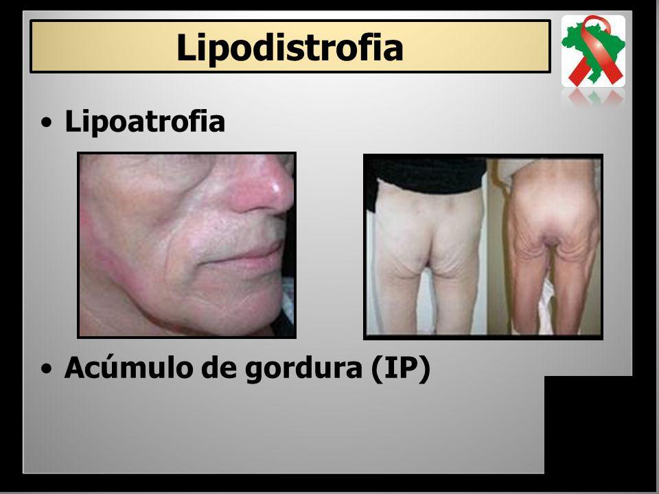 – Dislipidemia – Lipodistrofia – Hepatotoxicidade – Intolerância GI –Aumento do risco de sangramento em hemofílicos – Interações medicamentosas (rifampicina, benzodiazepínicos e anticonvulsivantes) Inibidores da Protease