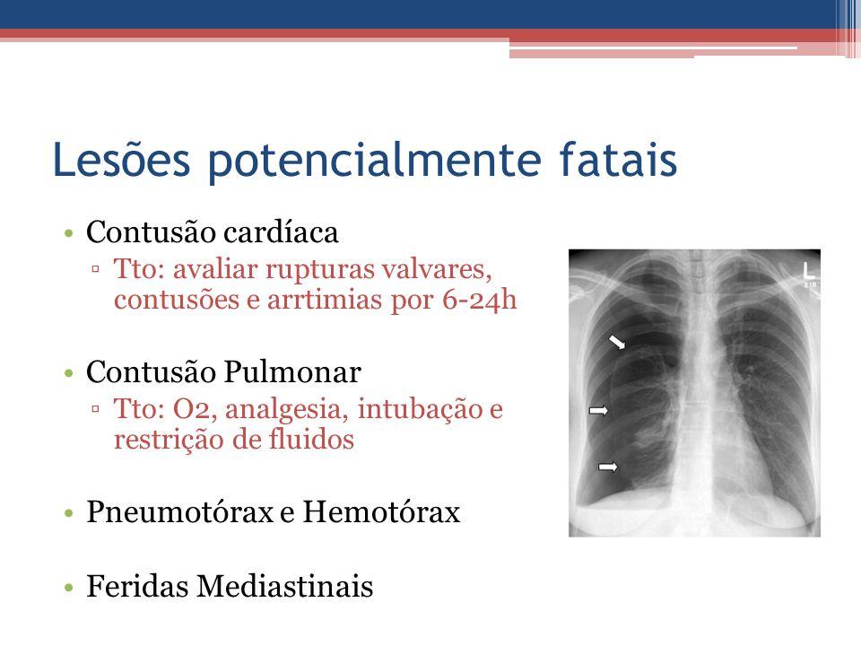 Lesões potencialmente fatais Contusão cardíaca ▫Tto: avaliar rupturas valvares, contusões e arrtimias por 6-24h Contusão Pulmonar ▫Tto: O2, analgesia,