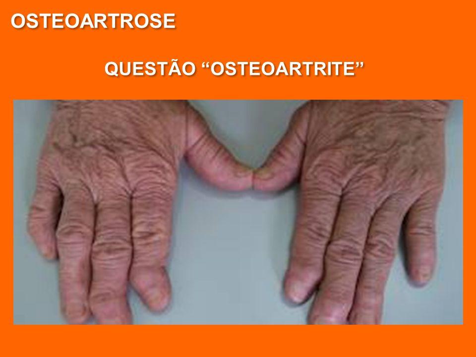 """QUESTÃO """"OSTEOARTRITE"""" OSTEOARTROSE"""