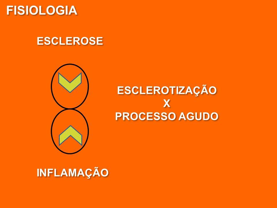 INFLAMAÇÃO ESCLEROSE FISIOLOGIA ESCLEROTIZAÇÃO X PROCESSO AGUDO ESCLEROTIZAÇÃO X PROCESSO AGUDO