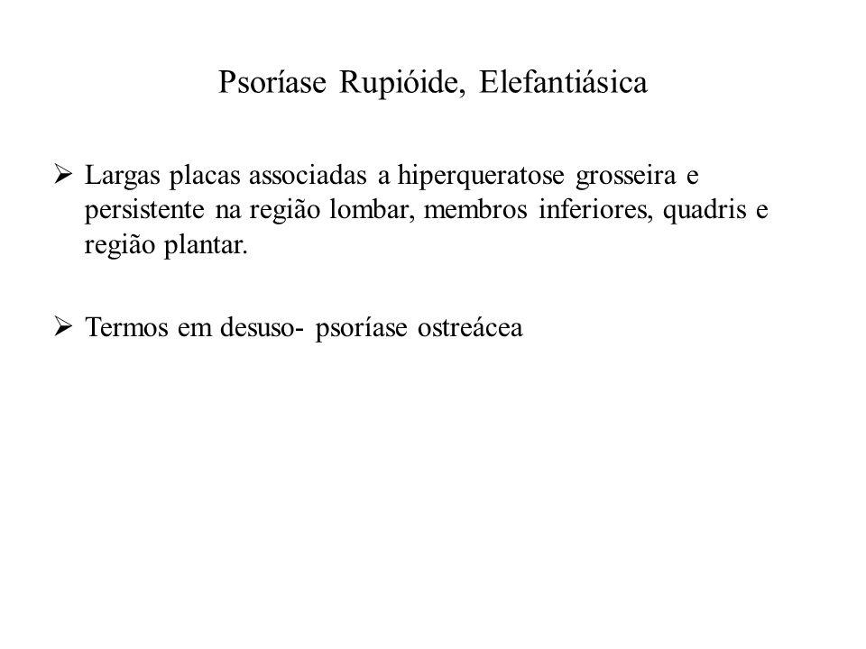 Psoríase Rupióide, Elefantiásica  Largas placas associadas a hiperqueratose grosseira e persistente na região lombar, membros inferiores, quadris e região plantar.