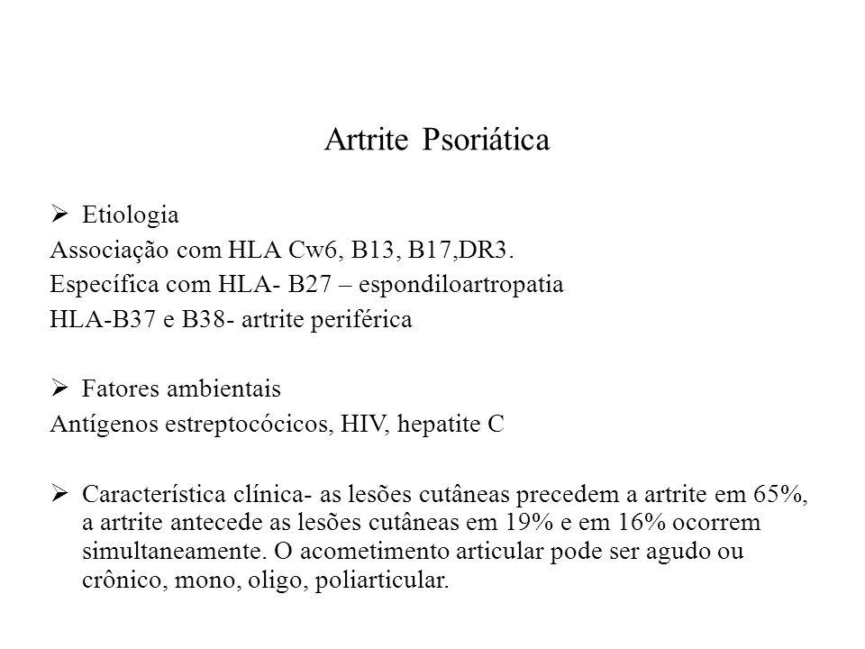 Artrite Psoriática  Etiologia Associação com HLA Cw6, B13, B17,DR3.