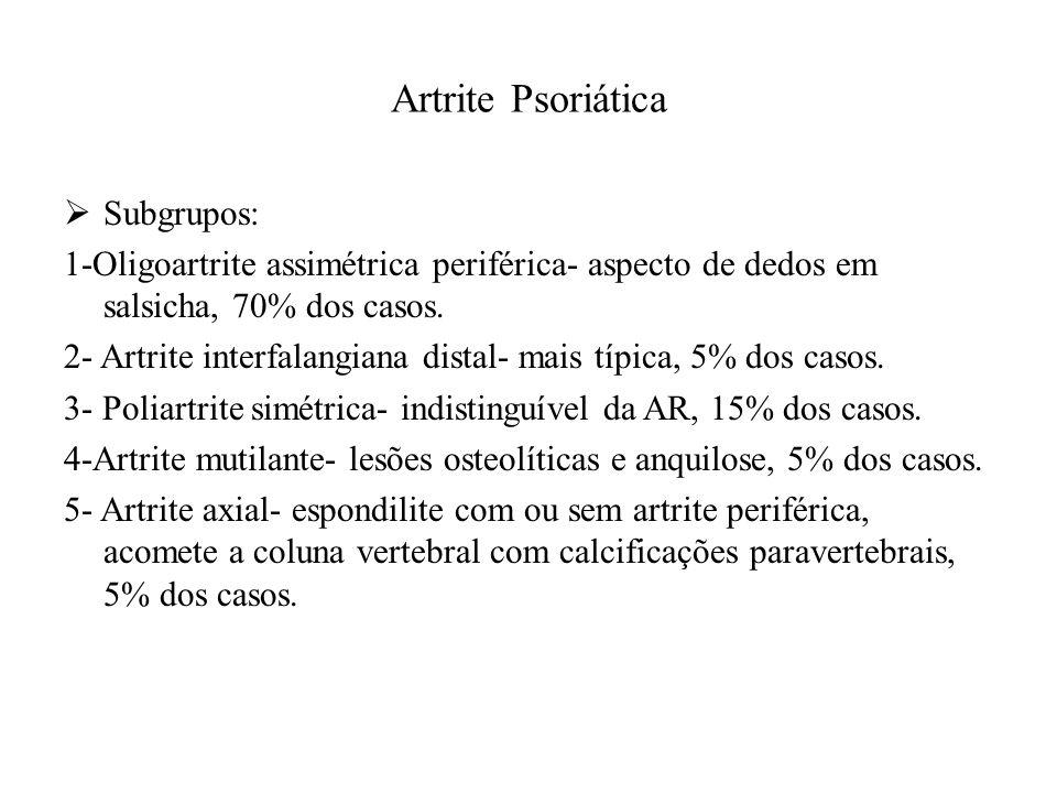 Artrite Psoriática  Subgrupos: 1-Oligoartrite assimétrica periférica- aspecto de dedos em salsicha, 70% dos casos.