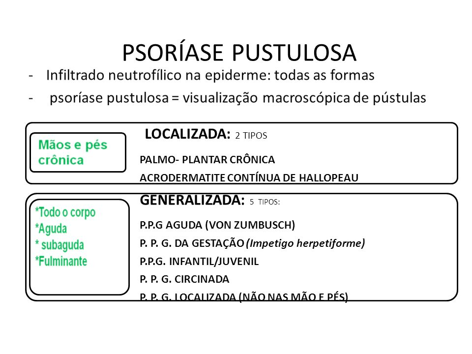 PSORÍASE PUSTULOSA -Infiltrado neutrofílico na epiderme: todas as formas - psoríase pustulosa = visualização macroscópica de pústulas LOCALIZADA: 2 TIPOS PALMO- PLANTAR CRÔNICA ACRODERMATITE CONTÍNUA DE HALLOPEAU GENERALIZADA: 5 TIPOS: P.P.G AGUDA (VON ZUMBUSCH) P.