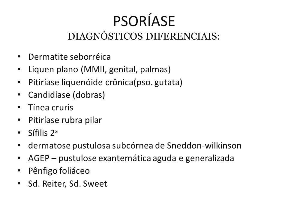 PSORÍASE DIAGNÓSTICOS DIFERENCIAIS: Dermatite seborréica Liquen plano (MMII, genital, palmas) Pitiríase liquenóide crônica(pso.