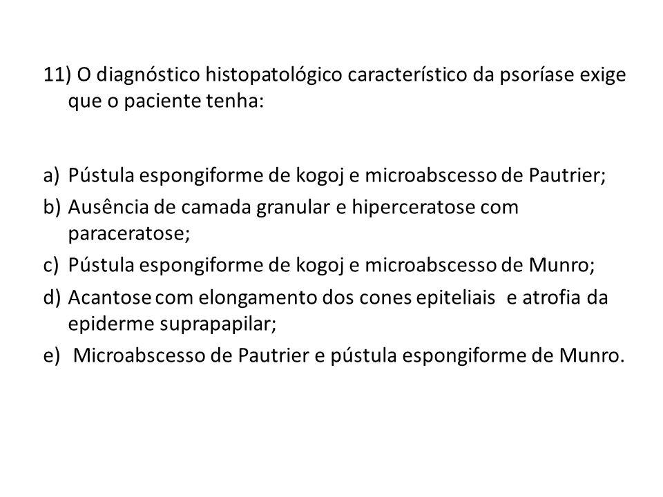 11) O diagnóstico histopatológico característico da psoríase exige que o paciente tenha: a)Pústula espongiforme de kogoj e microabscesso de Pautrier; b)Ausência de camada granular e hiperceratose com paraceratose; c)Pústula espongiforme de kogoj e microabscesso de Munro; d)Acantose com elongamento dos cones epiteliais e atrofia da epiderme suprapapilar; e) Microabscesso de Pautrier e pústula espongiforme de Munro.