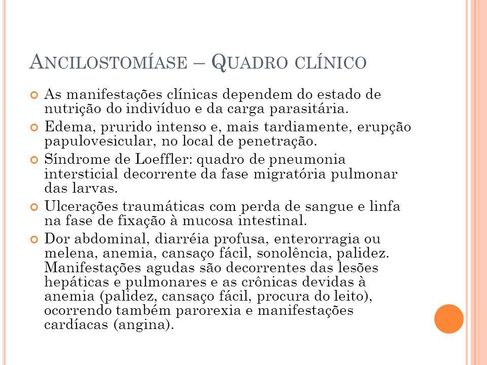 A NCILOSTOMÍASE – Q UADRO CLÍNICO As manifestações clínicas dependem do estado de nutrição do indivíduo e da carga parasitária.