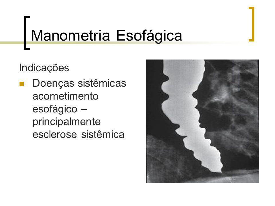 Manometria Esofágica Indicações Doenças sistêmicas acometimento esofágico – principalmente esclerose sistêmica