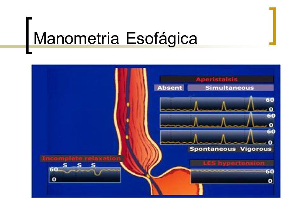 Manometria Esofágica