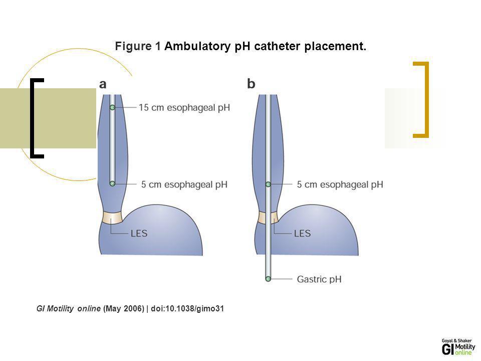 GI Motility online (May 2006) | doi:10.1038/gimo31 Figure 2 Catheter free pH monitoring system (Bravo system).