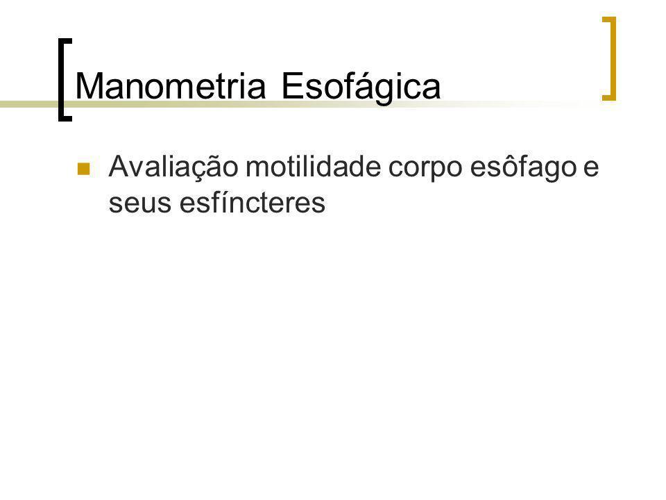 Manometria Esofágica Método Catéteres flexíveis com sensores de pressão
