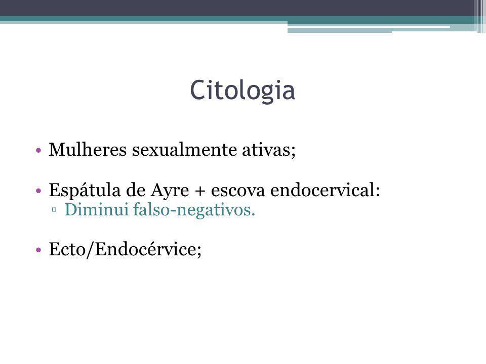 Citologia Mulheres sexualmente ativas; Espátula de Ayre + escova endocervical: ▫Diminui falso-negativos. Ecto/Endocérvice;