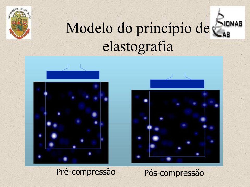 Modelo do princípio de elastografia Pré-compressão Pós-compressão