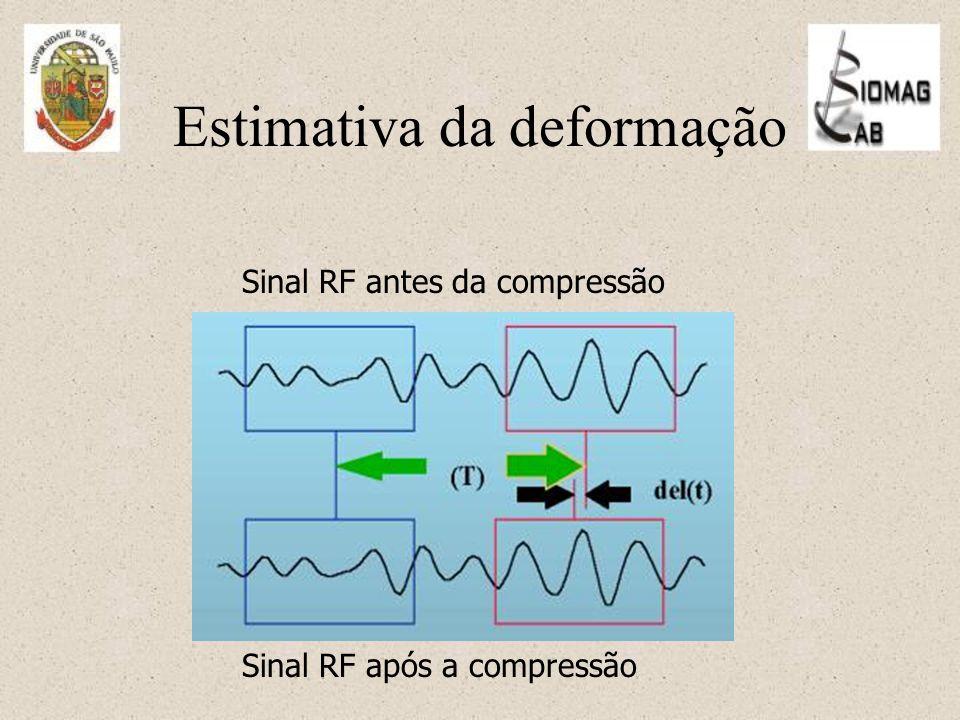 Estimativa da deformação Sinal RF após a compressão Sinal RF antes da compressão