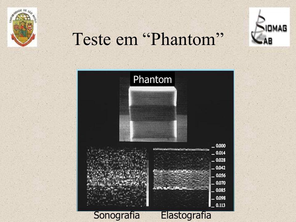 Teste em Phantom Phantom SonografiaElastografia