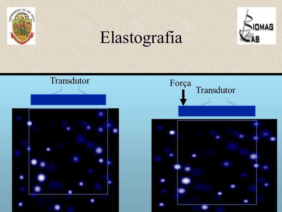 Elastografia Transdutor Força