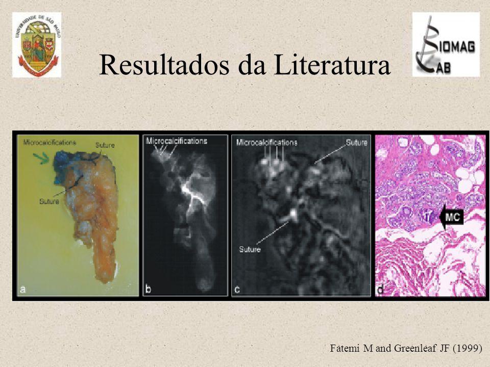 Resultados da Literatura Fatemi M and Greenleaf JF (1999)