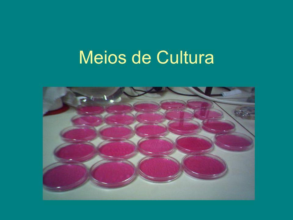 Definição Material nutriente preparado no laboratório para crescimento de microorganismo Agar nutriente Caldo nutriente Agar inclinado