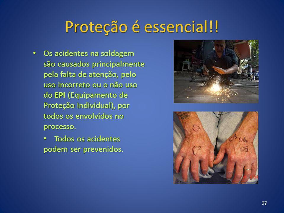 Proteção é essencial!! Os acidentes na soldagem são causados principalmente pela falta de atenção, pelo uso incorreto ou o não uso do EPI (Equipamento