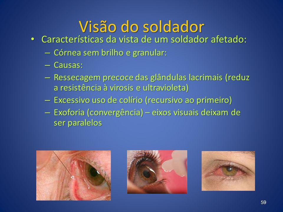 Visão do soldador Características da vista de um soldador afetado: Características da vista de um soldador afetado: – Córnea sem brilho e granular: –