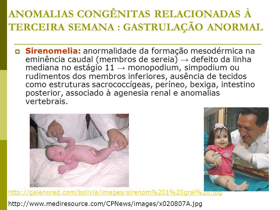 ANOMALIAS CONGÊNITAS RELACIONADAS À TERCEIRA SEMANA : GASTRULAÇÃO ANORMAL  Sirenomelia: anormalidade da formação mesodérmica na eminência caudal (mem