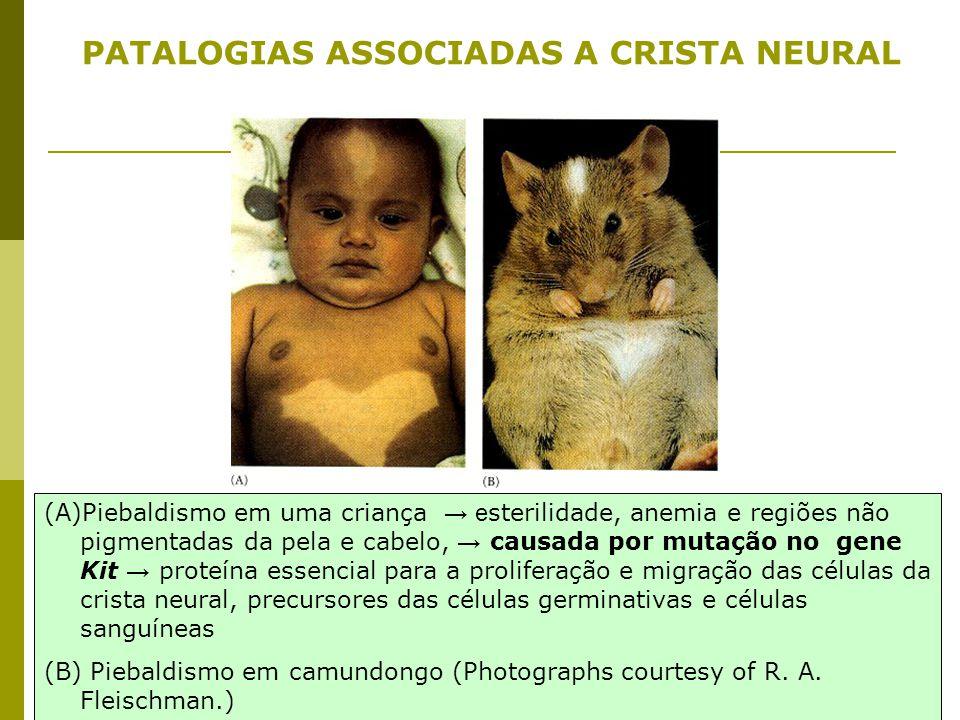 (A)Piebaldismo em uma criança → e sterilidade, anemia e regiões não pigmentadas da pela e cabelo, → causada por mutação no gene Kit → proteína essenci
