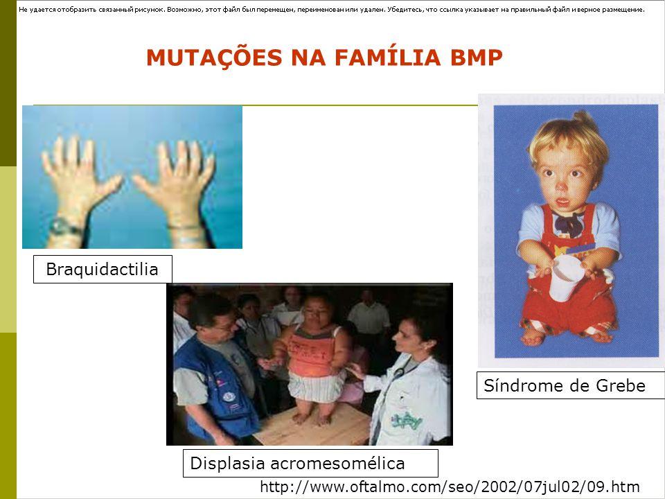 http://www.oftalmo.com/seo/2002/07jul02/09.htm Braquidactilia Síndrome de Grebe MUTAÇÕES NA FAMÍLIA BMP 1. Displasia acromesomélica