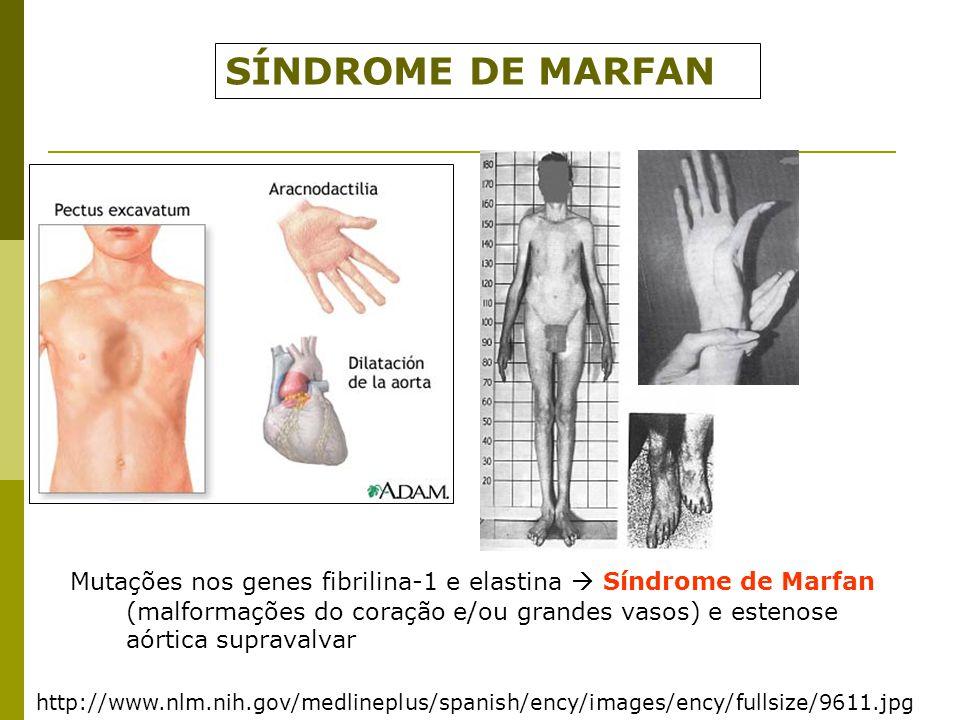 http://www.nlm.nih.gov/medlineplus/spanish/ency/images/ency/fullsize/9611.jpg SÍNDROME DE MARFAN Mutações nos genes fibrilina-1 e elastina  Síndrome