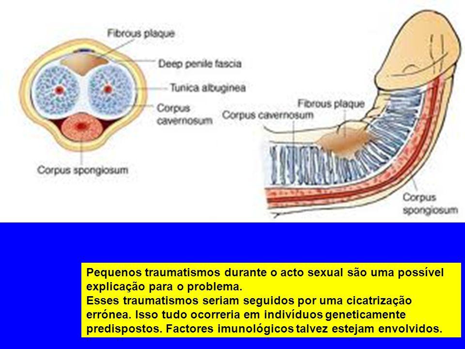 Outras situações podem acompanhar a doença de Peyronie, como a diabete, gota, uso de beta bloqueadores, esclerose do tímpano