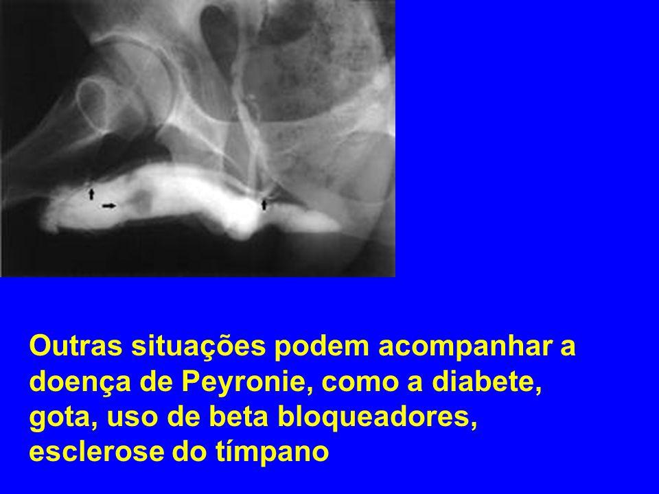 Complicações: A doença de Peyronie pode tornar as relações sexuais dolorosas difíceis ou até impossíveis consoante o grau de curvatura.