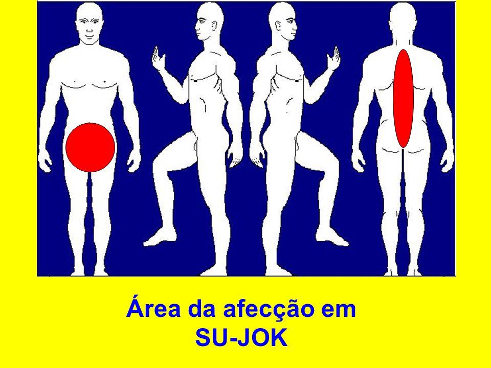 Área da afecção em SU-JOK