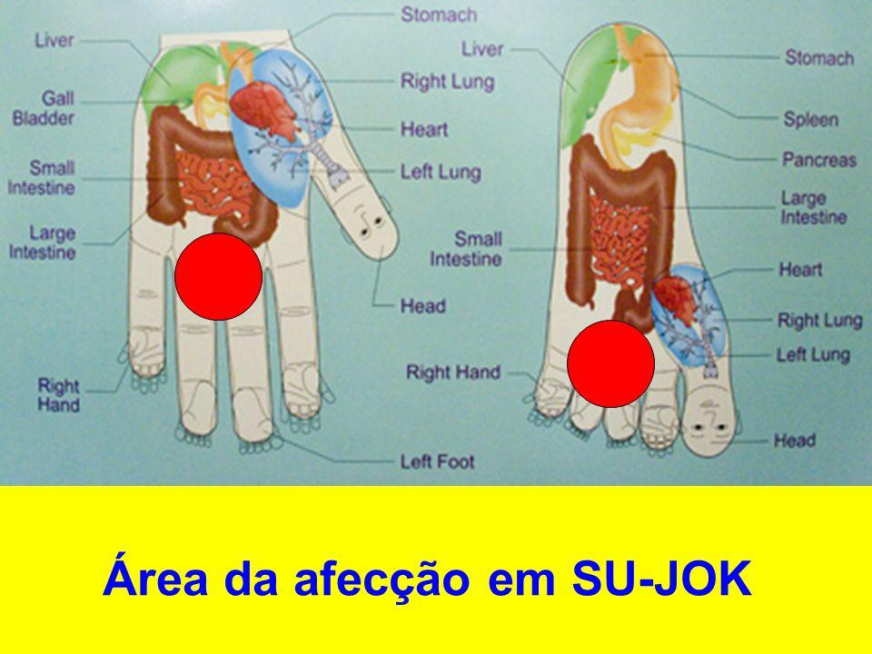 Área de tratamento em SU-JOK