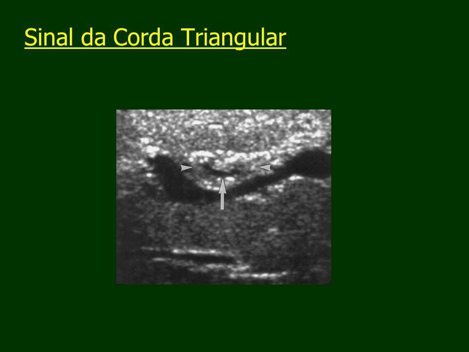 Sinal da Corda Triangular