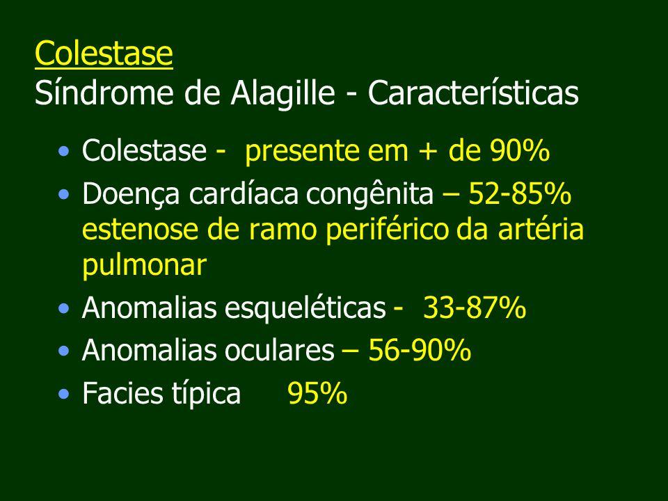 Colestase Síndrome de Alagille - Características Colestase - presente em + de 90% Doença cardíaca congênita – 52-85% estenose de ramo periférico da artéria pulmonar Anomalias esqueléticas - 33-87% Anomalias oculares – 56-90% Facies típica 95%