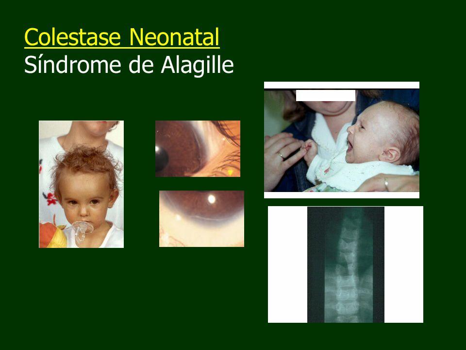 Colestase Neonatal Síndrome de Alagille