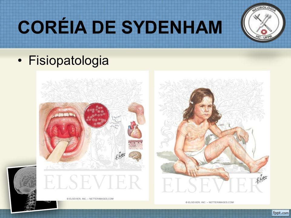 CORÉIA DE SYDENHAM Fisiopatologia