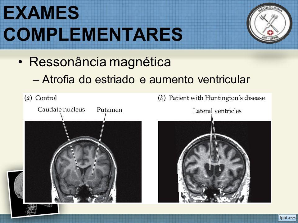 EXAMES COMPLEMENTARES Ressonância magnética –Atrofia do estriado e aumento ventricular
