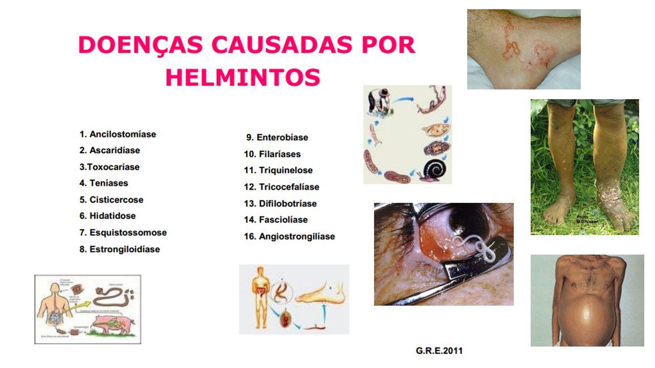 LEVAMISOL Ascaris lumbricoides AÇÃO NICOTÍNA SÍMILE BLOQUEIO DE JUNÇÃO NEUROMUSCULAR OVOS NÃO SÃO DESTRUÍDOS BOA ABSORÇÃO ORAL ATRAVESSA BHE ELIMINAÇÃO RENAL MEIA VIDA 4 HORAS EFEITOS ADVERSOS LEVES, TGI